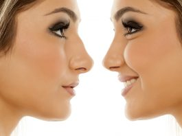 From Crooked to Confident: 10 Reasons to Get Rhinoplasty
