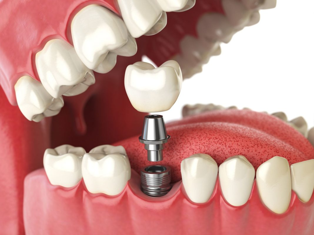 4 Reasons Why Dental Implants are Right For You